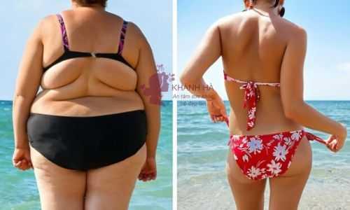 giảm béo vùng bụng
