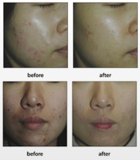 kết quả sau khi sử dụng serum chấm mụn Black Peel