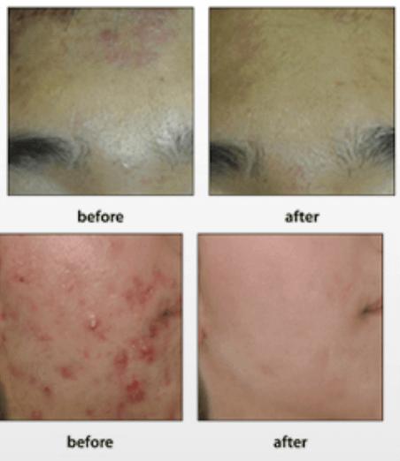 serum black peel acne spot trị mụn hiệu quả